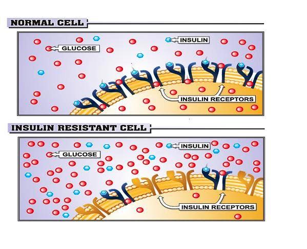 Quando la sensibilità all'insulina peggiora, il metabolismo tende a far ingrassare